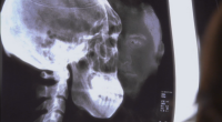 File:Underneathxray.png