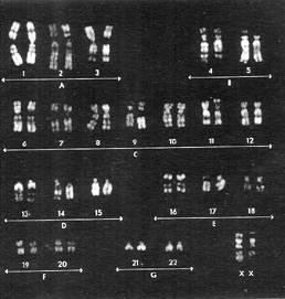 File:Karyotype isochromosomeX.jpeg