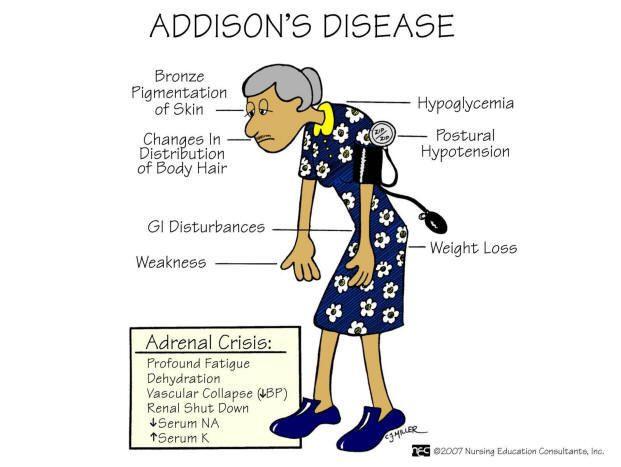 File:Addison's Disease.jpg