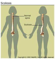 Arthritis-scoliosis scoliosisspine