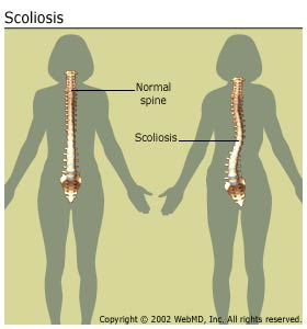 File:Arthritis-scoliosis scoliosisspine.jpg