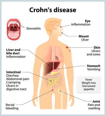 File:Crohns disease dp.jpg