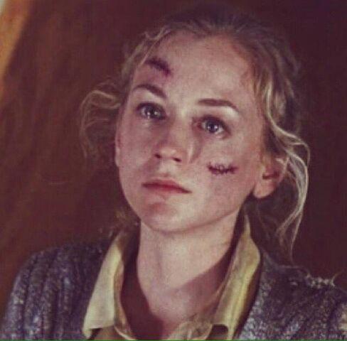 File:Season 5, Episode 8 - Beth Greene's last moments.jpg