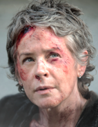AMC 506 Carol Injured