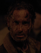 516 Rick Bloodied