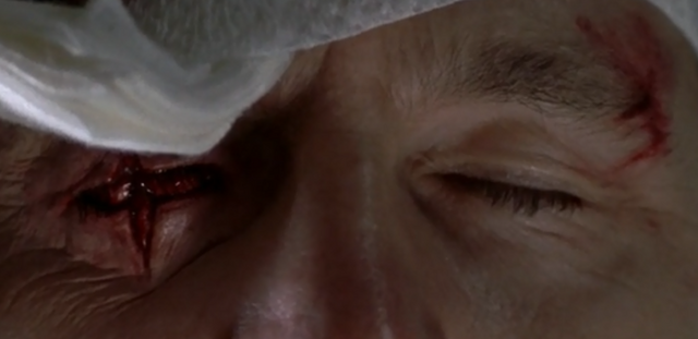 File:Governor Gouged Eye.png