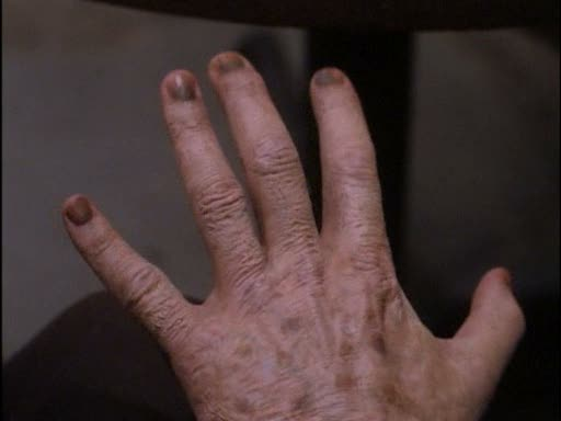 File:Javna's hand aging rapidly.jpg