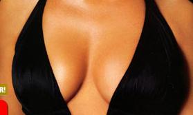 File:Jessica breast2.jpg