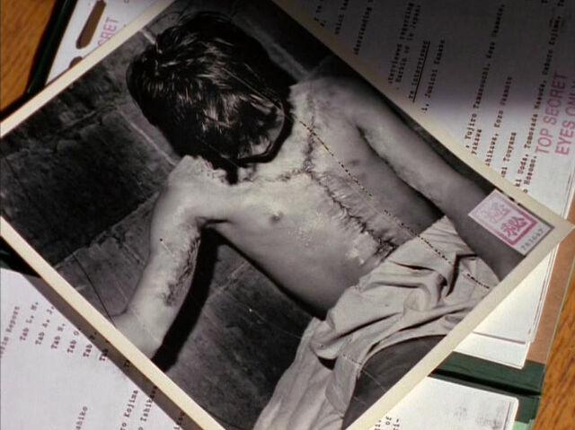 File:Vivisection Old Photograph Unit 731 Nisei.jpg